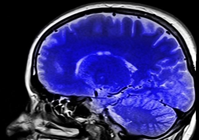artigo sobre morte encefálica